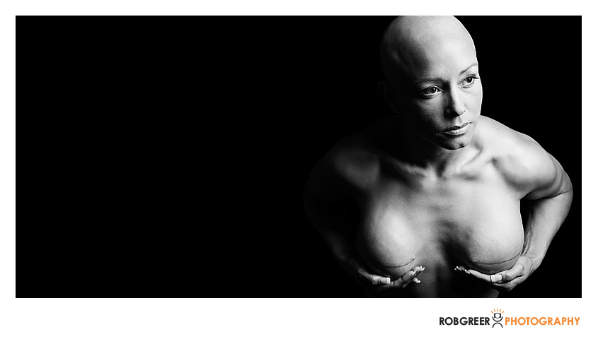 Album---Double-Mastectomy-14
