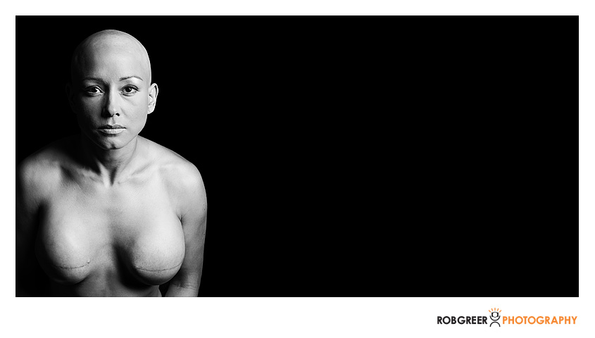 Album---Double-Mastectomy-17