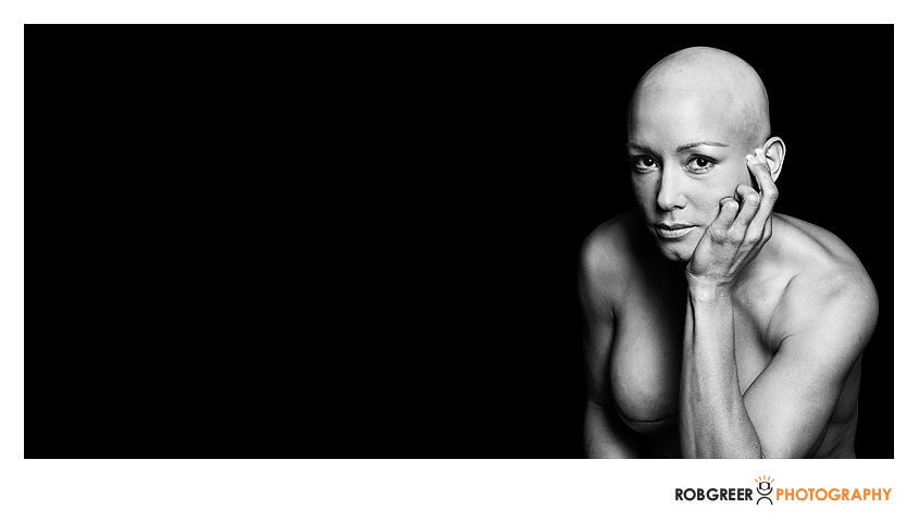 Album---Double-Mastectomy-20